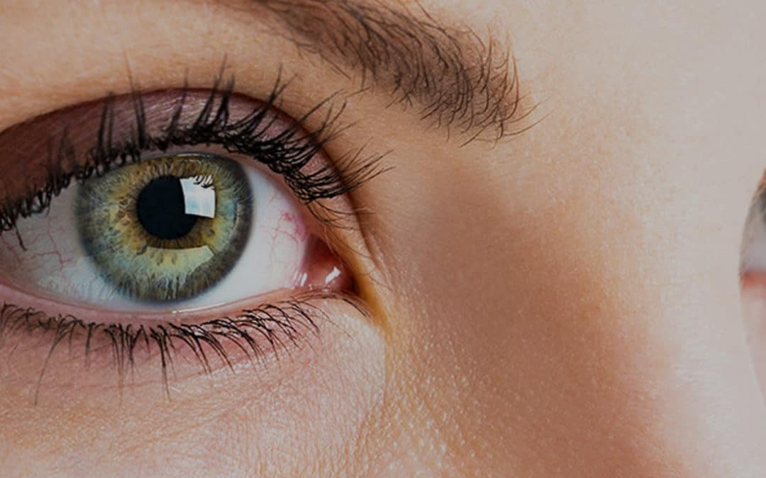 An Introduction to Allergic Conjunctivitis & It's Common Causes